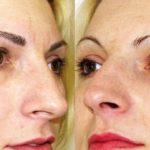micropigmentare sprancene-inainte si dupa (1)