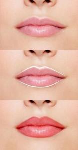Pigmentare totala buze
