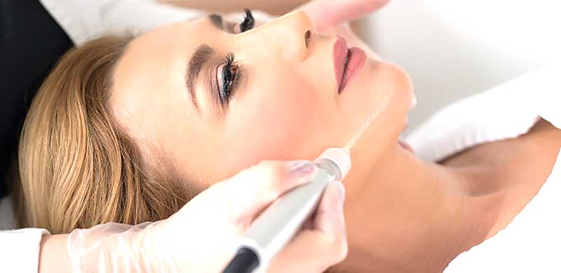 Tratament cosmetic microdermabraziune