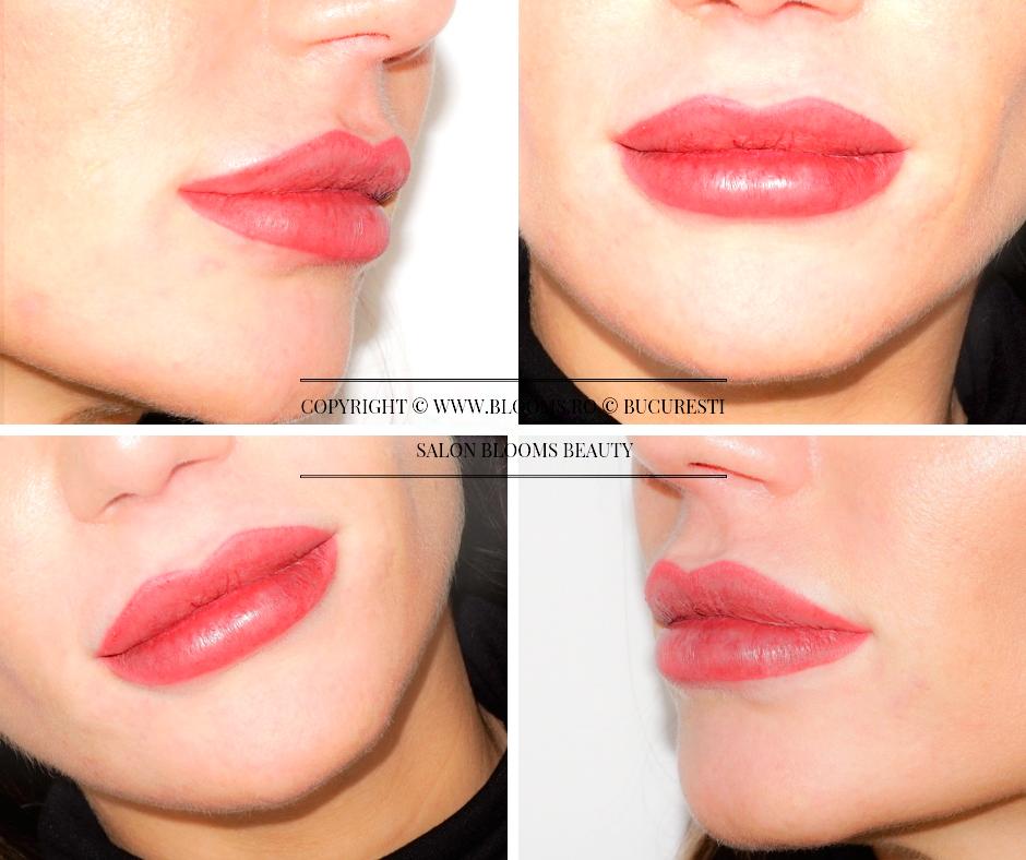 Botox dupa Micropigmentare buze