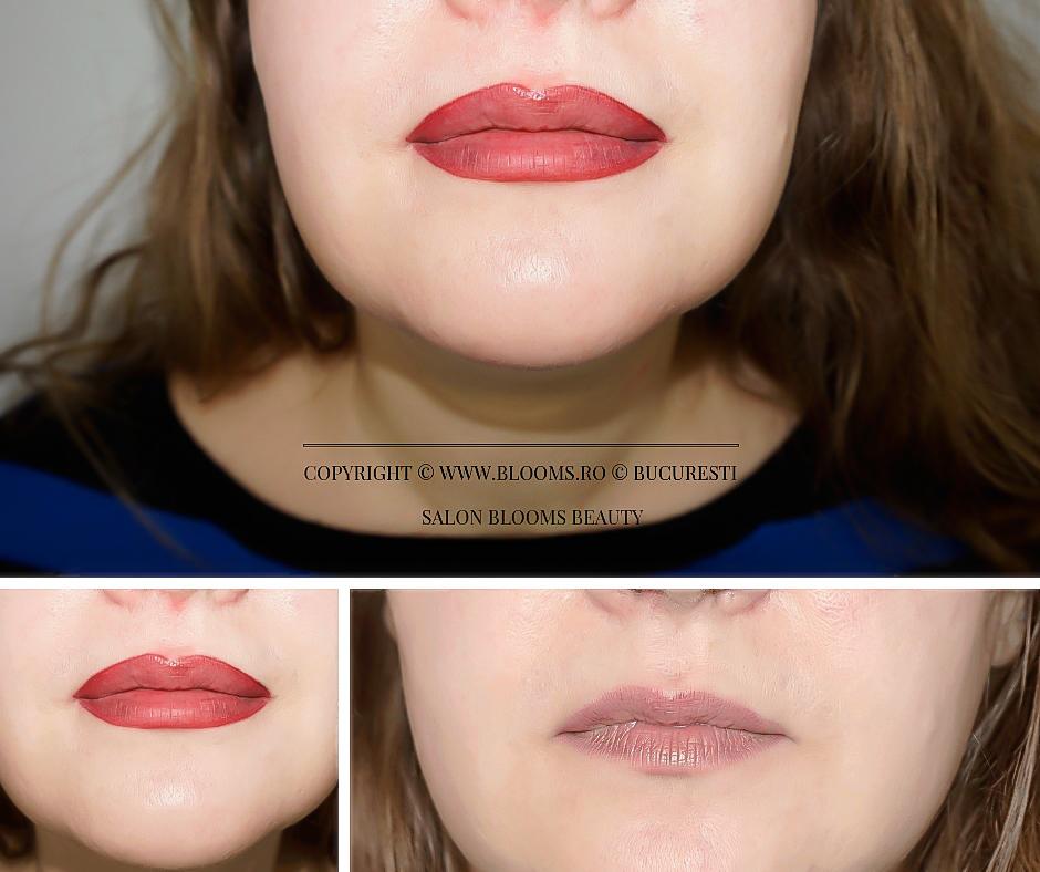 Micropigmentare buze - culoare mai inchisa a buzelor imediat dupa